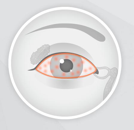 ¿Cómo afecta las enfermedades de la piel a los ojos?