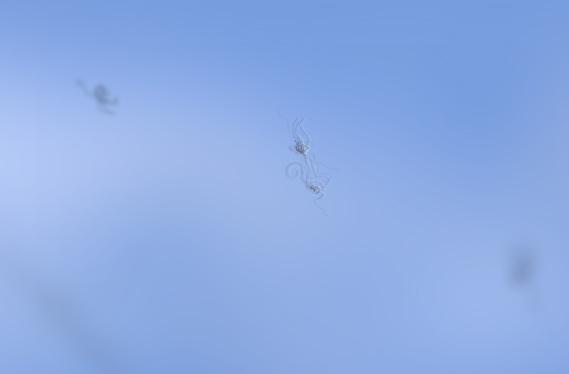 Preguntas frecuentes sobre las moscas volantes o miodesopsias