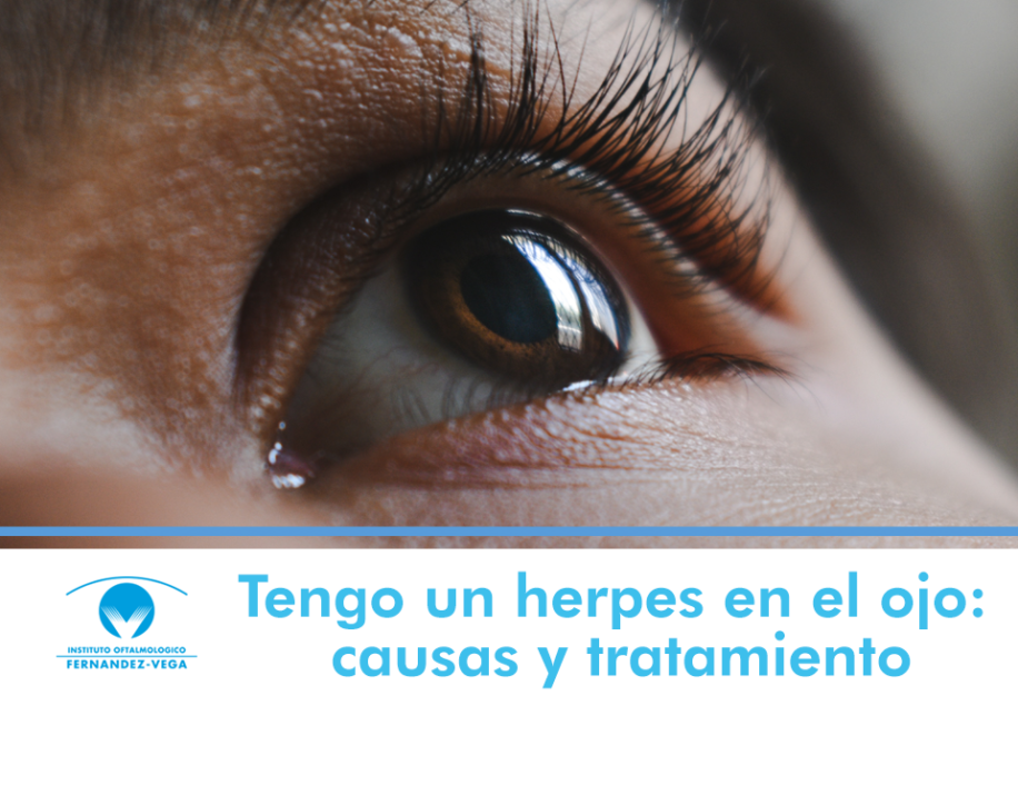 herpes en el ojo
