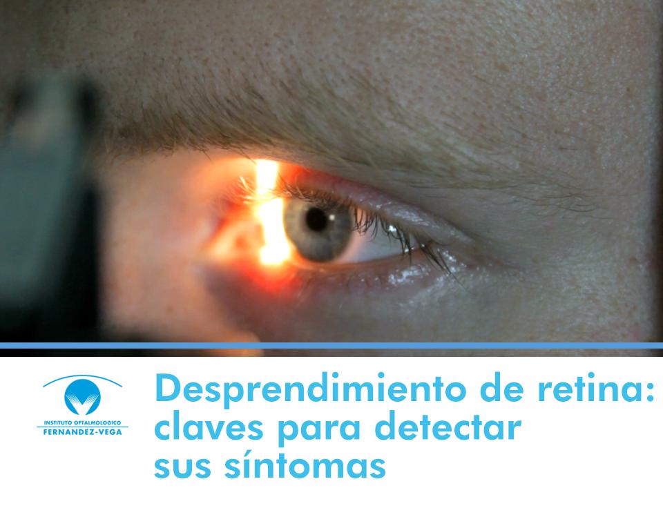 Desprendimiento de retina: claves para detectar sus síntomas