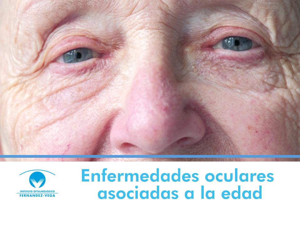 Las enfermedades oculares asociadas a la edad, los ojos también envejecen