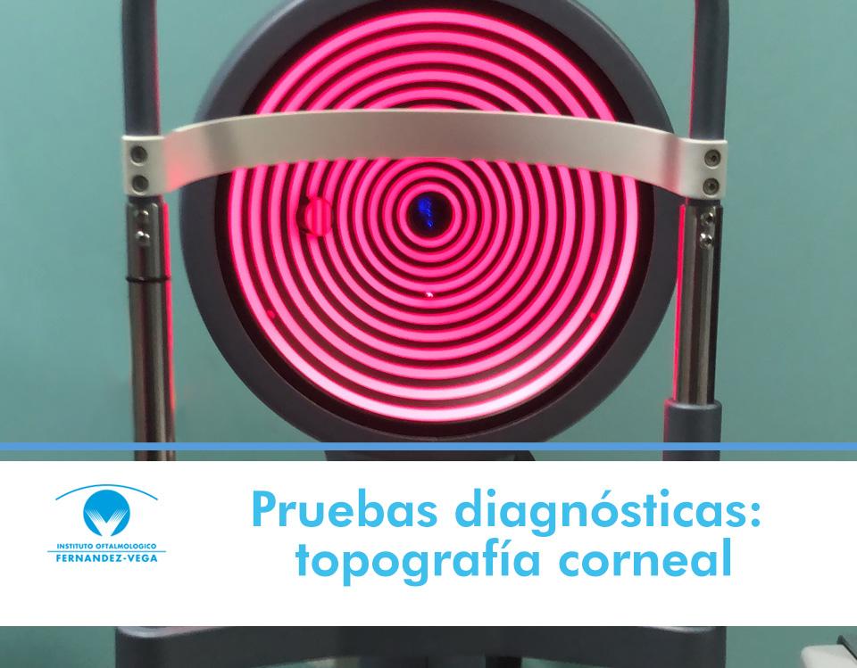Pruebas diagnósticas: topografía corneal, ¿qué es y para qué sirve?