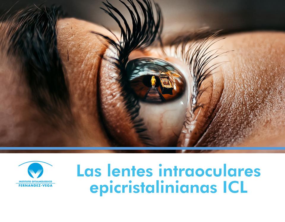Las lentes intraoculares epicristalinianas ICL