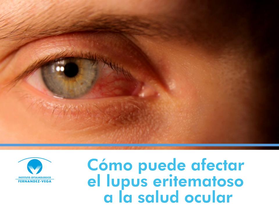 Cómo puede afectar el lupus eritematoso a la salud ocular