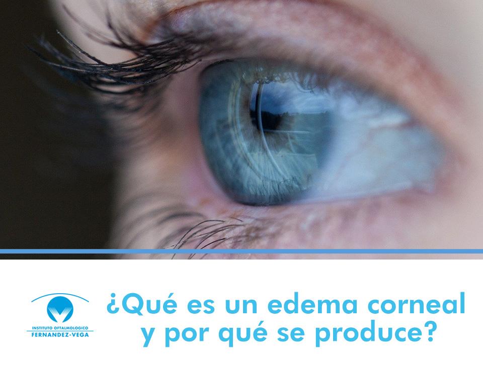 ¿Qué es un edema corneal y por qué se produce?