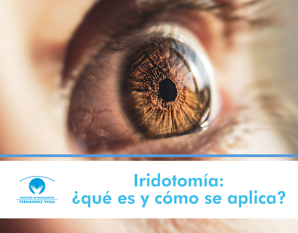 Iridotomía: qué es y cómo se aplica en el tratamiento del glaucoma