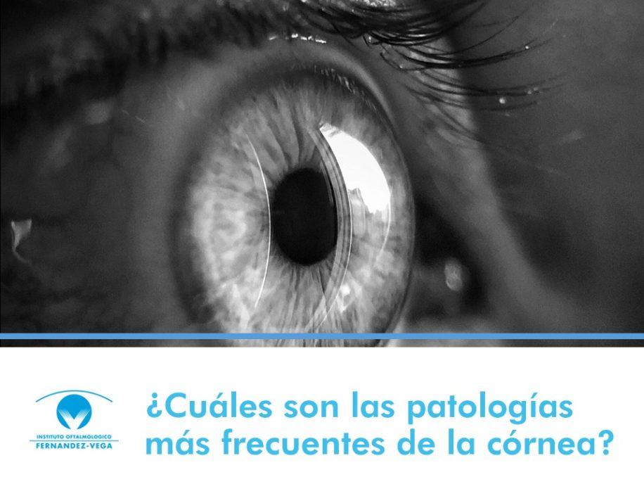 Enfermedades de la córnea del ojo