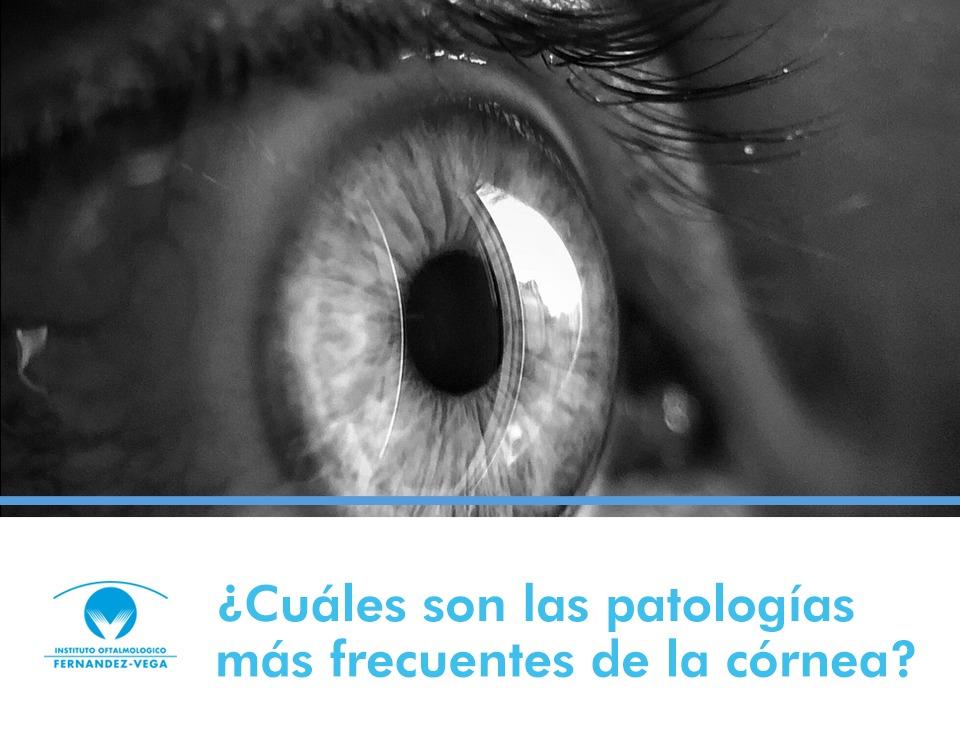¿Cuáles son las patologías más frecuentes de la córnea?