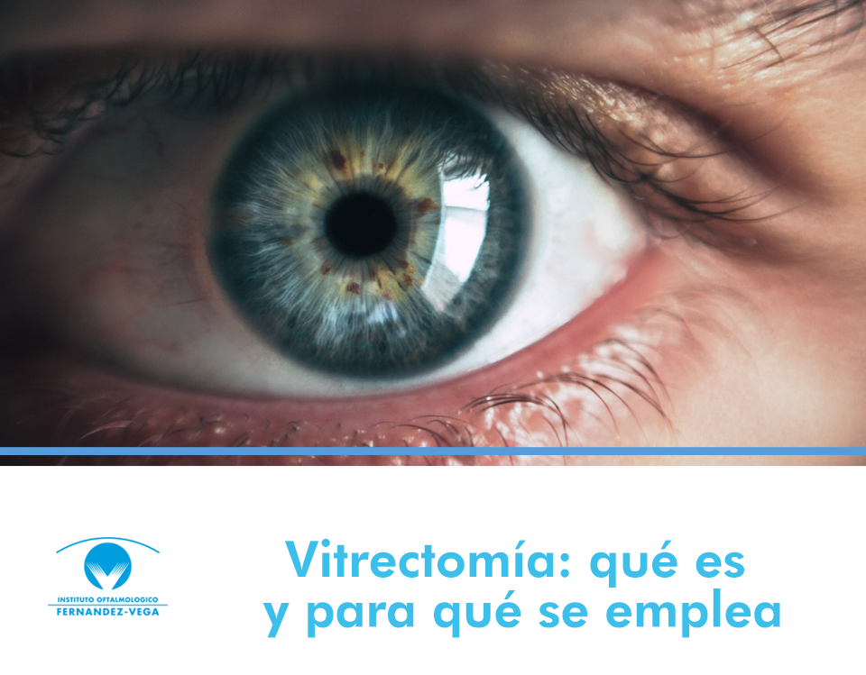 Vitrectomía: qué es y para qué se emplea