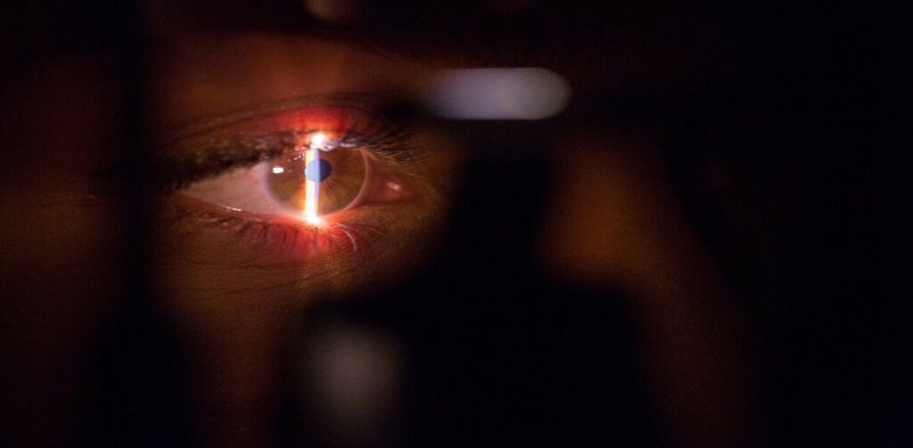 Procedimiento Tensión Ocular